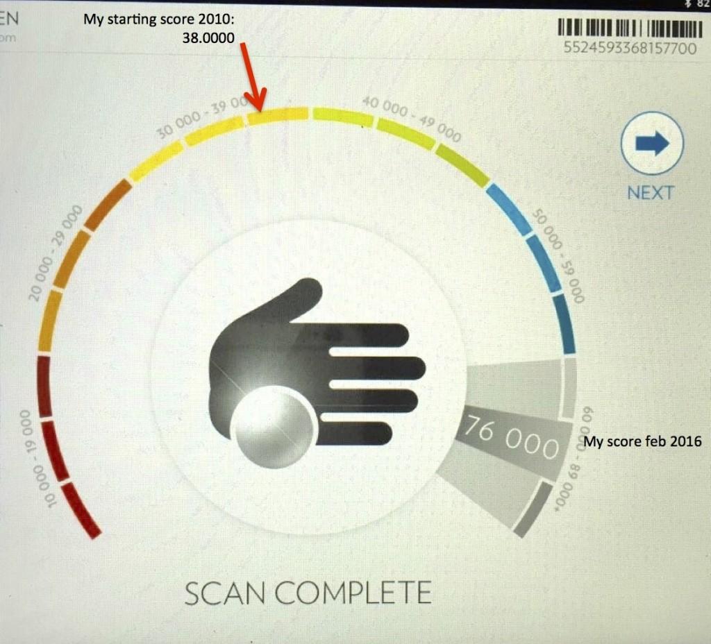 Scan score 76000
